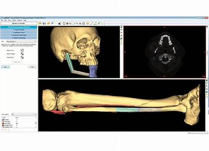 Surgical Cmf Planning Virtual Proplan Services Reconstruction