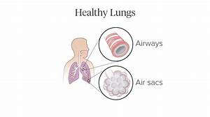 Pictures Of Copd U2019s Effect On The Lungs