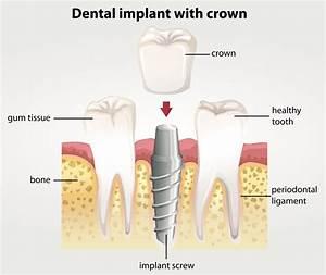 Find Dental Care Quickly  U0026 Easily  U22c6 Smile Smarts