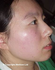 Laser IPL for Pigmentation Before and After Photos, Birmingham