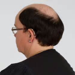 Top Extension Customized Hairpiece Excessive Hair Loss