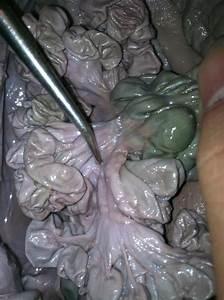 Small Intestine  Mesenteries