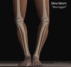 Knee Genu Varum Deformity