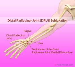 Distal Radioulnar Joint
