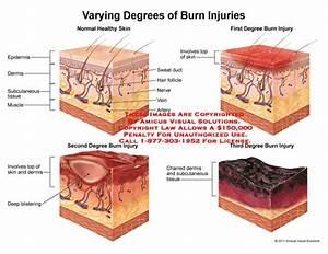 Varying Degrees Of Burn Injuries