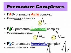 Image Gallery of Premature Atrial Contractions Vs ...