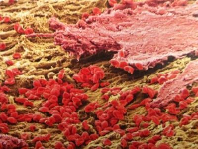 endometrial shedding without blood shedding the uterine lining an electron micrograph shows