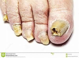 Que Donner A Manger A Un Ecureuil Sauvage : pilzartige nagel infektion ~ Dallasstarsshop.com Idées de Décoration