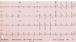 Cardiovascular Curveball  U2022 Litfl Clinical Cases  U2022 Ecg