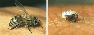 Bienen Vertreiben Essig : lungauer bienenlehrpfad der stich und das bienengift ~ Whattoseeinmadrid.com Haus und Dekorationen