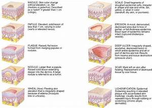 Image Result For Skin Conditions Diagrams