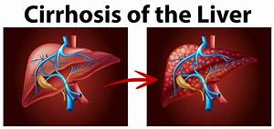 Diagram Showing Cirrhosis Of The Liver
