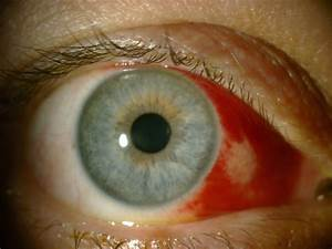Traumatic Subconjunctival Hemorrhage Involving The Nasal