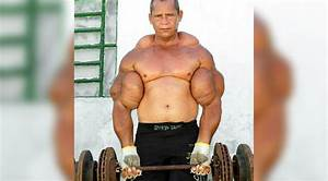 5 Bodybuilders Who Allegedly Use Synthol