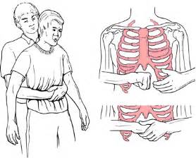 Image result for images of heimlich maneuver