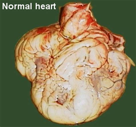 pericardial sac cardiovascular 5