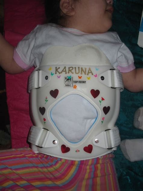 Trunk Support Options for Children with Low Tone