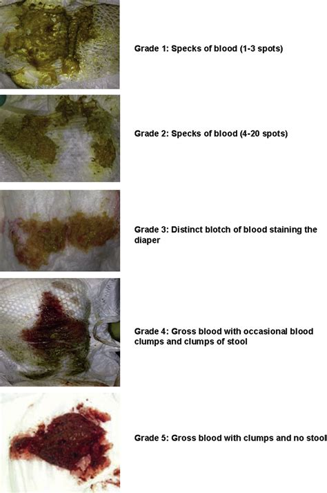 Blood In Stool Human Pictures To Pin On Pinterest Pinsdaddy