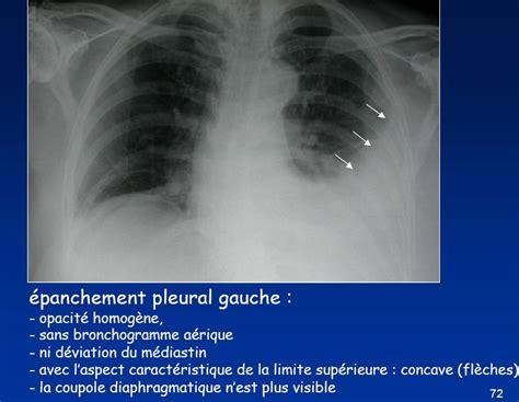 accouchement en siege la semiologie de l 39 imagerie medicale i 4 5 plèvre