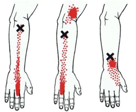 Krampen in benen en armen