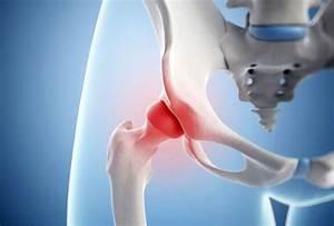 Лечение пояснично крестцового остеохондроза пиявками