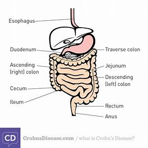 What Are The Different Types Of Crohn U0026 39 S Disease