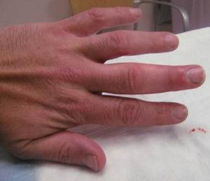 Чем лечить грибок ногтя на руках в домашних условиях