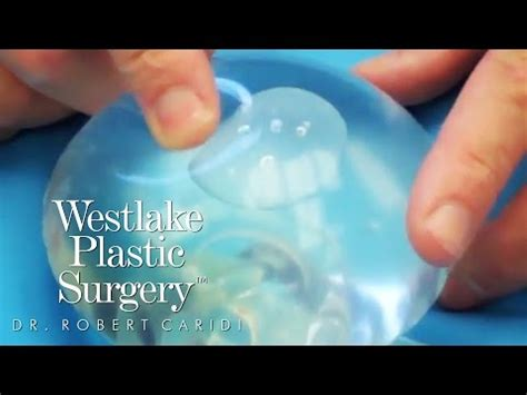 Saline Breast Implant Rippling  Youtube. Time And Priority Management. Private Loans Real Estate Easy Up Tent Canopy. Text Free Apps For Android Vps Server Trial. Incorporating In Delaware Vs Nevada. Management Courses In Boston. South Boston Locksmith Babylonian Art History. Dental Hygienist Online School. Purple Heart Veterans Foundation
