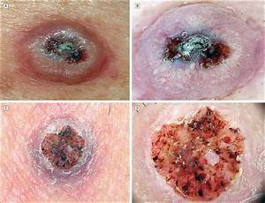 Dermoscopy Of Squamous Cell Carcinoma And Keratoacanthoma