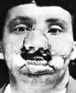 World War 1 Plastic Surgery