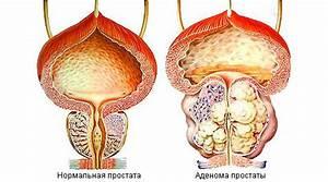Сонизин от простатита