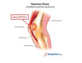 What Is Runners Knee (Patellofemoral Pain Syndrome), Symptoms ... Inamrinone
