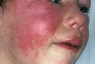Scarlet Fever - Causes, Symptoms, Long Term Effects, Treatment