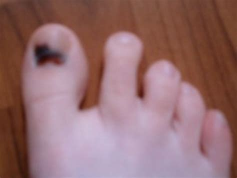 Bruised Nail Bed by Bruised Toenail Pictures Healing Time Causes Treatment