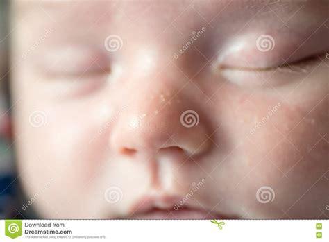 Image Gallery Milia Newborn