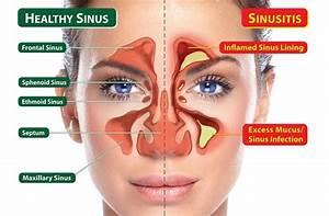 Neti Pot Recipe For Sinus Cleansing  U2013 Sho U0026 39 S Life Detox