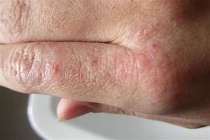 Как различить аллергию от псориаза