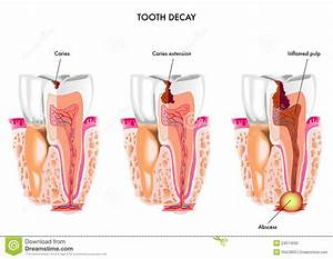 Tooth decay stock vector. Image of dental, decay, oral ...