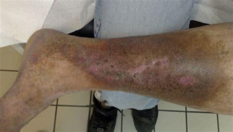 offenes bein ulcus cruris ursachen diagnose therapien