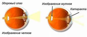 Лекарство от повышенного давления анаприлин