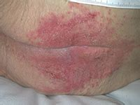 mycose du siege dermites du siège groupe plaies et cicatrisation à