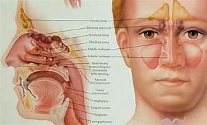 Swollen Sinus