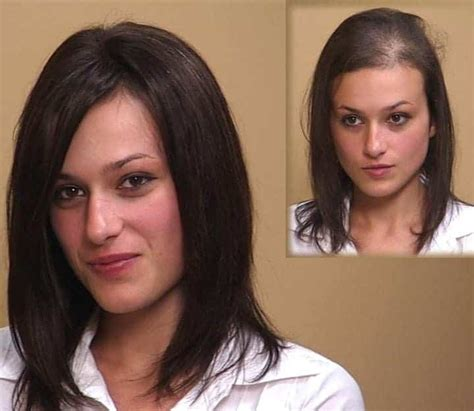 Female Hair Replacement and Hair Loss Solutions for Women