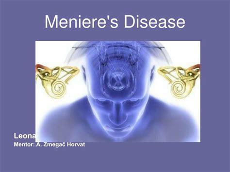 menieres disease powerpoint  id