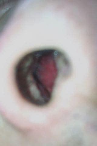 鼻 の 中 かさぶた