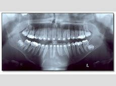 COM March 2004UW School of Dentistry