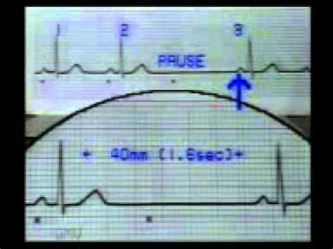 learning ecg sinus pause  escape beats  youtube