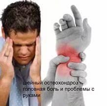 Лечение синдрома позвоночной артерии при остеохондрозе шейного отдела