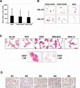 Expression Of Brd4 In Leukemic Cells In Acute Myeloid Leukemia  Aml
