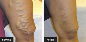 Vein Treatment Before and After Pictures | Laser Lipo ...